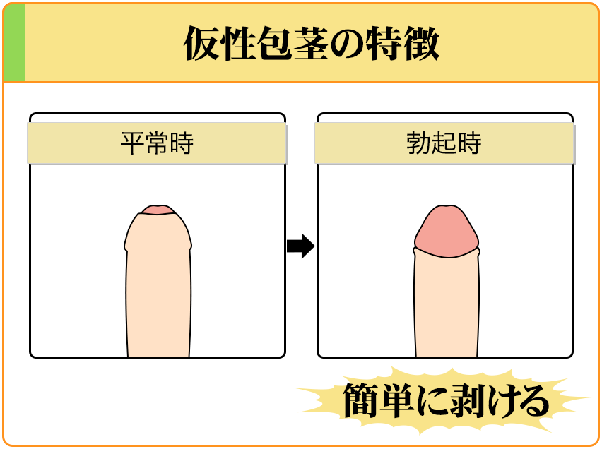 仮性包茎は、勃起時に簡単に剥くことができる。