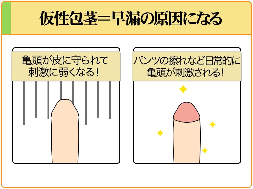 仮性包茎を治すことで、過敏性早漏を改善する
